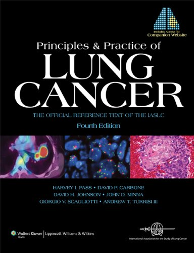 Principles and Practice of Lung Cancer
