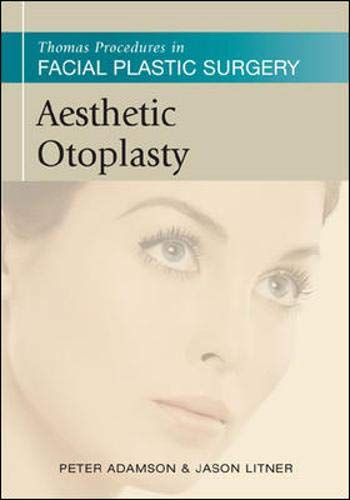 Thomas Procedures in Facial Plastic Surgery: Aesthetic Otoplasty